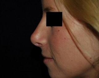 Rhinoplasty (Nose Surgery) Virginia