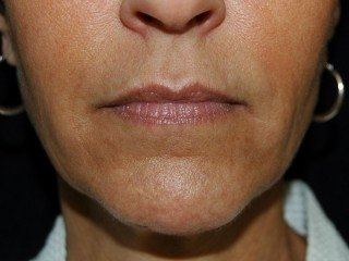 Dermal Fillers Virginia
