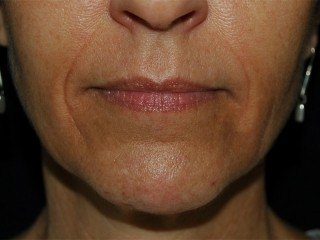 Dermal Fillers DC