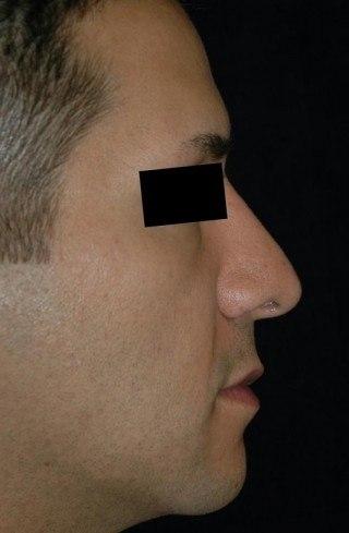 Rhinoplasty (Nose Surgery) Virginia