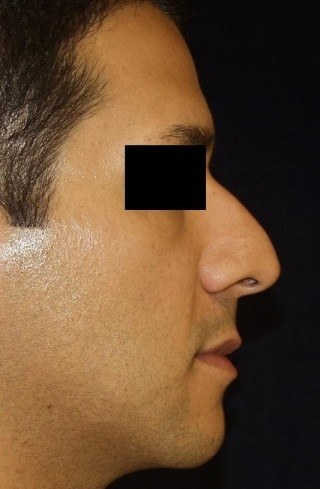 Rhinoplasty (Nose Surgery) DC