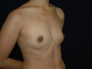 DC Breast Augmentation DC