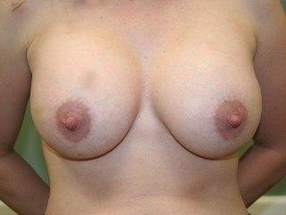 DC Breast Augmentation Virginia