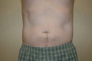 In-Office Liposuction DC Virginia
