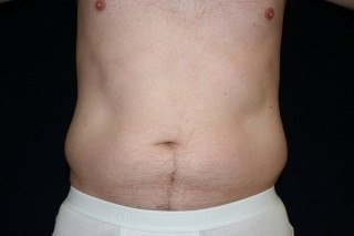 In-Office Liposuction DC DC