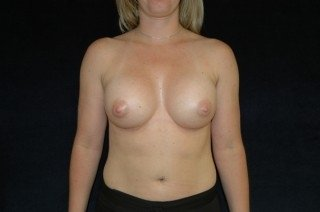 DC Breast Augmentation Virginia