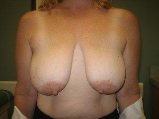 Breast Lift DC