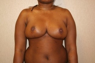 Breast Reduction Virginia