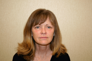 Facelift Procedure Virginia