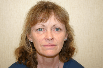 Facelift Procedure DC