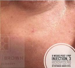 Micro-Needling (w/ PRP) Virginia