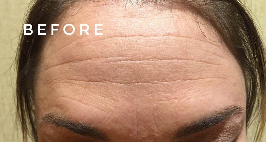 http://www.brunobrownplasticsurgery.com/wp-content/uploads/2016/05/After-botox-1.jpg