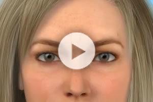 DC Botox® Cosmetic Northern Virginia