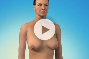 Breast Lift Northern Virginia