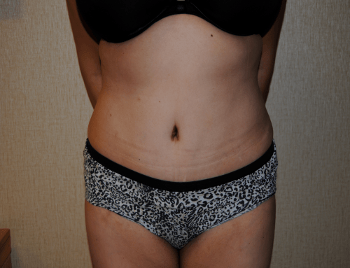 DC Tummy Tuck, Chevy Chase Abdominoplasty | Plastic Surgeons