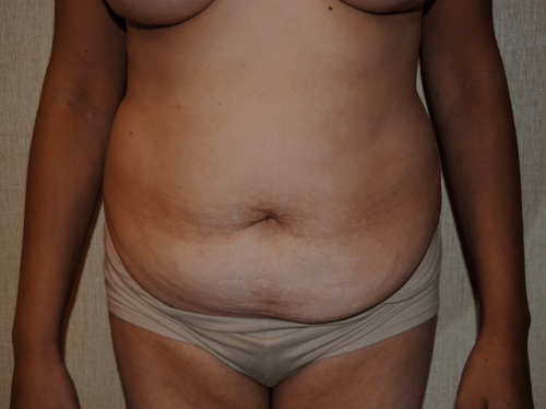 Tummy Tuck DC, Chevy Chase DC