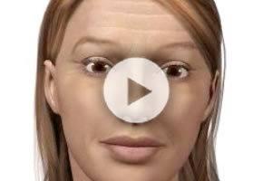 Chemical Peels & Facials Northern Virginia