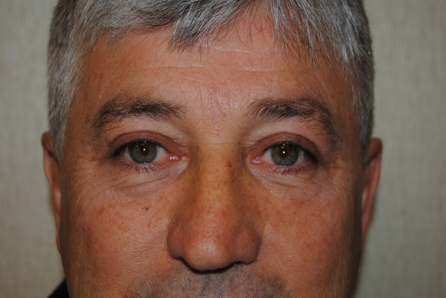Blepharoplasty (Eyelid Surgery) DC Virginia