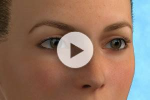 Blepharoplasty (Eyelid Surgery) DC Northern Virginia