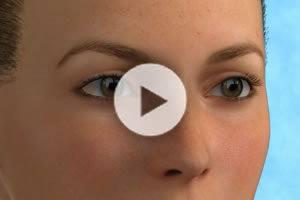 Blepharoplasty (Eyelid Surgery) DC Northern Virginia