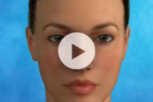 Facelift Procedure Northern Virginia
