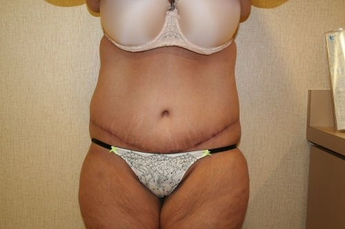 Tummy Tuck DC, Chevy Chase Virginia