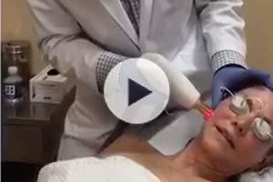 Laser Skin Resurfacing Northern Virginia