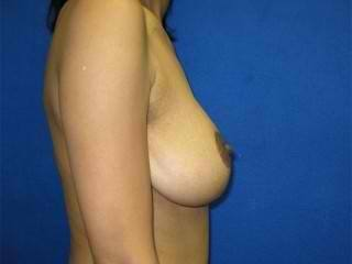 Breast Lift Virginia