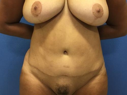 Tummy Tuck DC Virginia