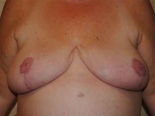 Breast Reduction Virginia