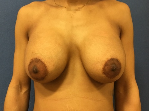 Breast Lift Virginia