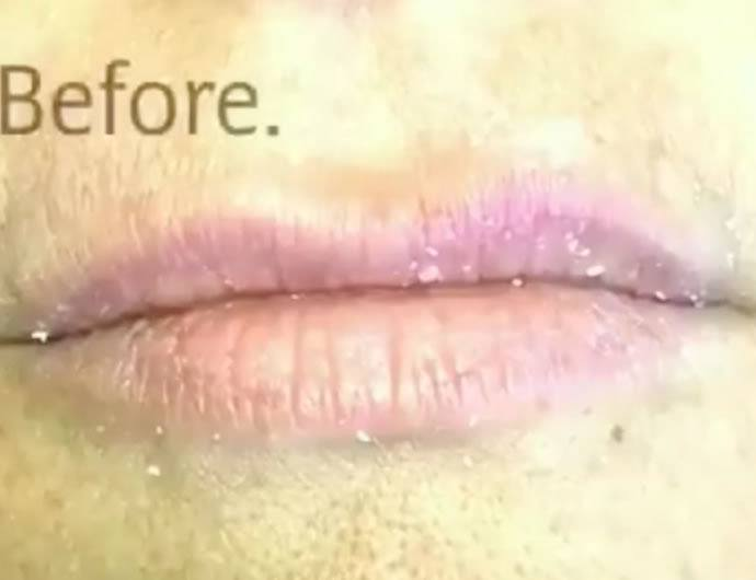 http://www.brunobrownplasticsurgery.com/wp-content/uploads/2016/05/Juvederm-lip-filler-dc-after.jpg