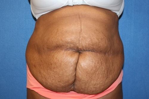 https://www.brunobrownplasticsurgery.com/wp-content/uploads/2016/05/pinkunderwear-tummy-tuckafter.jpg
