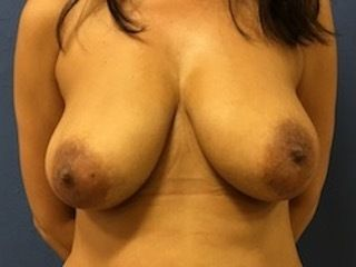 Breast Reconstruction DC