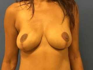 Breast Reconstruction Virginia