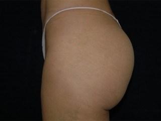 Brazilian Butt Lift DC Virginia