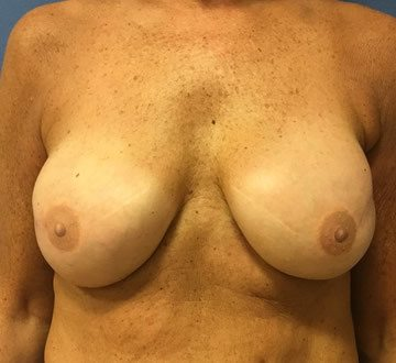 Pre-Pectoral (Over-the-Muscle) Breast Reconstruction Virginia