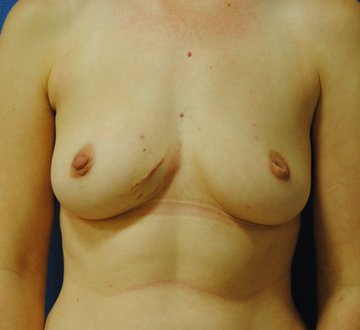 Pre-Pectoral (Over-the-Muscle) Breast Reconstruction DC