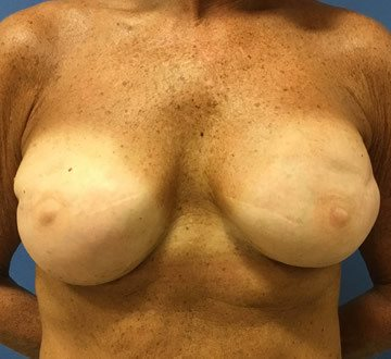 https://www.brunobrownplasticsurgery.com/wp-content/uploads/2016/07/Pre-Pectoral-Breast-Reconstruction-after3.jpg