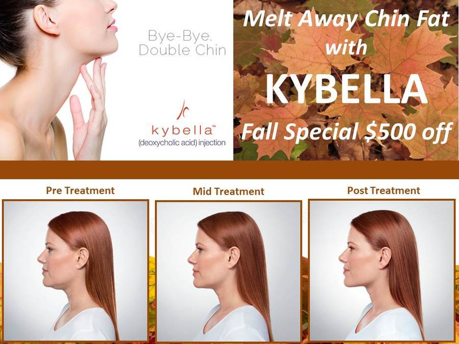 Kybella DC Offer Plastic Surgeons Office