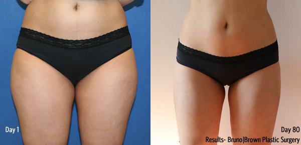 DC Liposuction Results