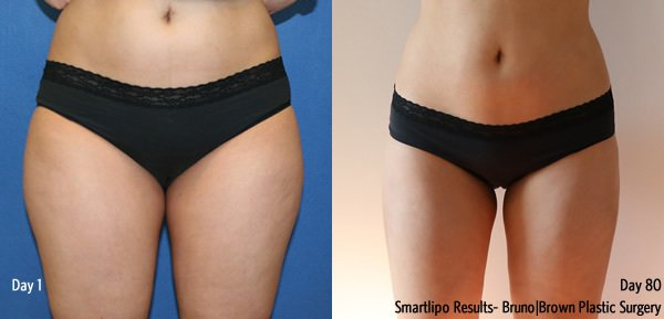 Smartlipo before and after Washington DC