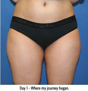 Smartlipo Results DC, Chevy Chase MD