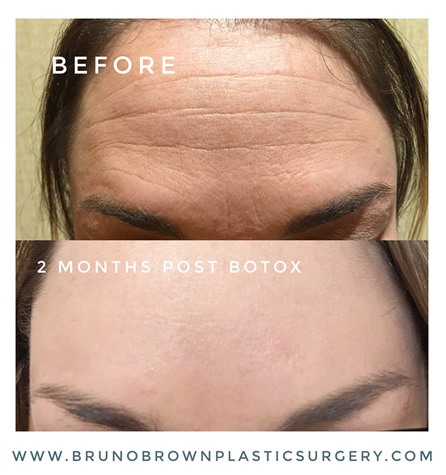 Botox-results