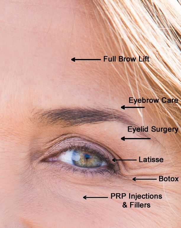 7 steps to younger eyes