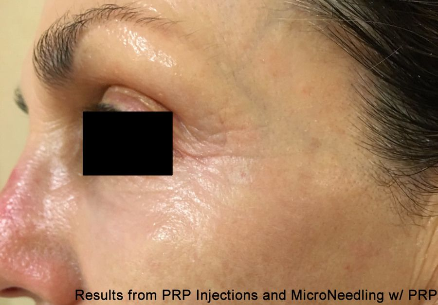 PRP Injections DC Virginia