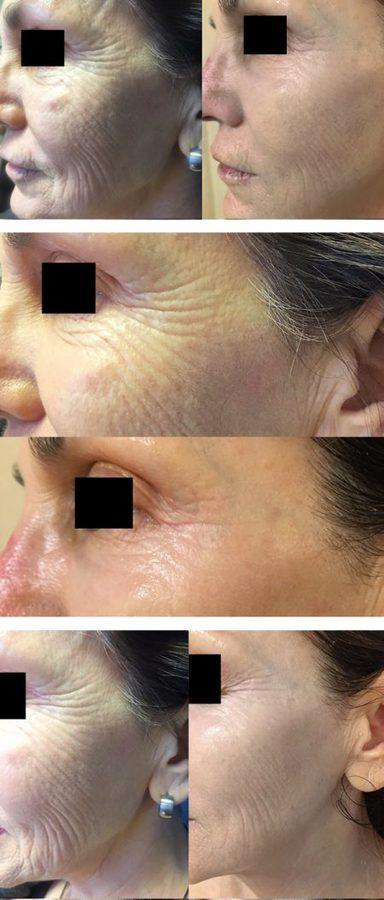 Before and After Results of PRP Injections DC by Top DC Plastic Surgeons