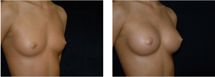 Breast Augmentation DC Before and After