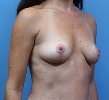 DC Breast Augmentation with Fat Grafting Virginia