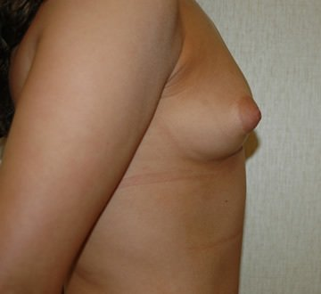 DC Breast Augmentation with Fat Grafting DC
